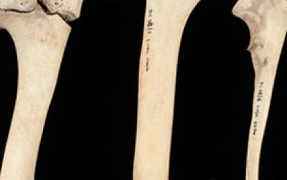 Forensic archaeology and Osteoarchaeology