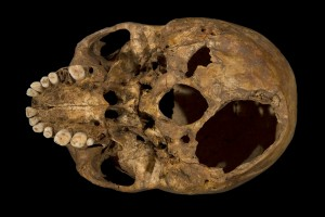 Richard's skull, showing some of his severe injuries, copyright University of Leicester