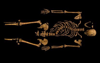 The fatal injuries of Richard III