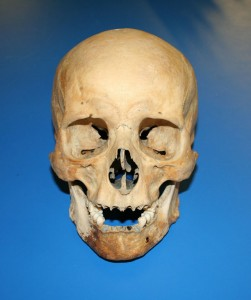 The archer's skull, recovered from the wreck of the Mary Rose