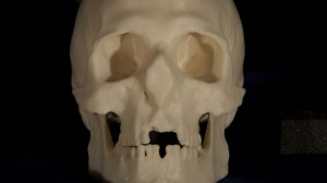 A model of the archer's skull was created on a 3D printer